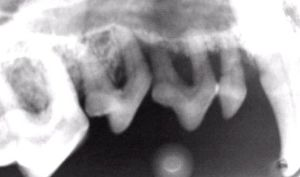 Dental X-ray: example of bone loss. Photo courtesy of www.dentalvet.com